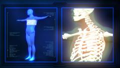 Medical x-ray scan - stock footage