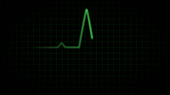 EKG with beeps Stock Footage