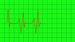 Heartbeat lines animation - greencreen effect Stock Footage