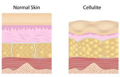 Cellulite versus smooth skin unlabeled Stock Illustration