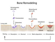Bone remodeling Stock Illustration