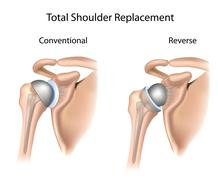 Conventional and reverse total shoulder replacement Stock Illustration