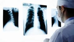 Young Doctor Placing X ray in radiology - stock footage