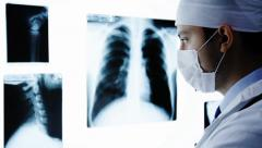 Young Surgeon looking X ray scans Stock Footage