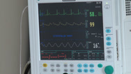 Stock Video Footage of Anaesthesia / Heartbeat / Blood Pressure Monitor