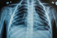 Child x-ray film Stock Photos