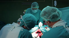Hip surgery. Surgeons team performing operation in hospital operating room. - stock footage