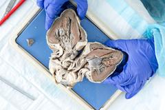 medical student displaying a bisected heart - stock photo