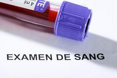 Blood analysis Stock Photos