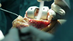 Surgeons team performing operation in hospital operating room, knee close up. - stock footage