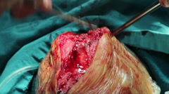 Surgeons team performing operation in hospital operating room,stitching close up Stock Footage
