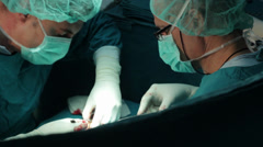 Arm surgery. Surgeons team performing operation hand in hospital operating room. Stock Footage