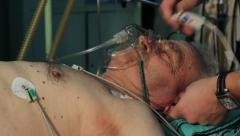 Patient lying in hospital bed before surgical operation. Close up face. Stock Footage