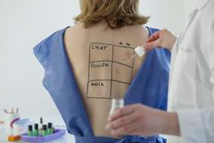 allergy test, woman - stock photo