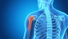 medical animation of a man having acute pain in the shoulder - stock footage