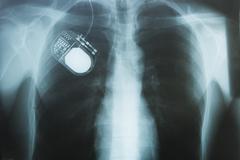 nerve stimulator, x-ray - stock photo