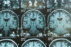 brain electrostimulation, nmr - stock photo