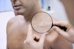 dermatology consultation man - stock photo