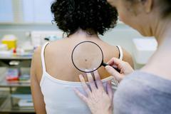Dermatology, symptomatology, woman Stock Photos