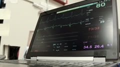 EKG monitor on a laptop in doctors office Stock Footage