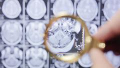 Medical research. Magnetic resonance imaging. - stock footage