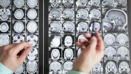 Stock Video Footage of Medical research. Magnetic resonance imaging.