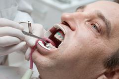 man during teeth whitening process - stock photo
