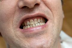 man with yellow teeth.  the harm of tobacco concept. - stock photo