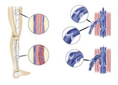 leg artery and aortic valves - stock illustration