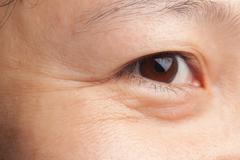 Eye wrinkle Stock Photos