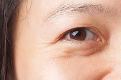 Wrinkle and under eye bag - stock photo