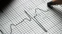 Analyzing electrocardiogram Stock Footage