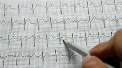 Identifying electrocardiogram - stock footage