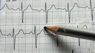 Stock Video Footage of Marking different waves of an ECG