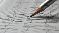 Identifying waves of an electrocardiogram - stock footage