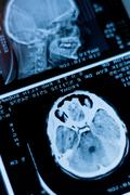 Closeup of a CT scan with brain and skull on it Stock Photos