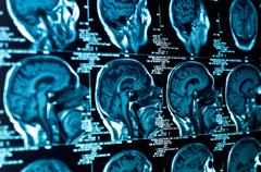 Closeup of a CT scan with brain Stock Photos