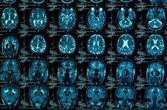 Sharp ct scan of the human brain Stock Photos