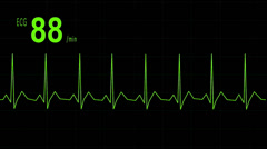 EKG animation heartbeat Stock Footage