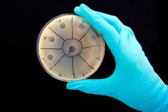 hand holding agar plate with bacteriophage plaques - stock photo