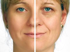 Correction of wrinkles on half of face Stock Photos
