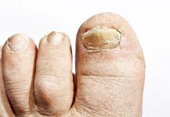 Fungus infection on nails Stock Photos