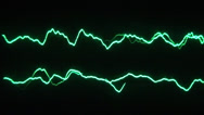 Stock Video Footage of Low frequency on a two channel oscilloscope 02