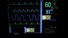 Vital Signs Monitor Slider Stock Footage