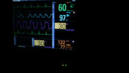 Stock Video Footage of Vital Signs Flat Line Slider