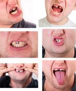Nuori mies kasvot rikki hammas Kuvituskuvat