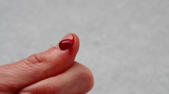 The cut thumb on the hand_blood Stock Footage