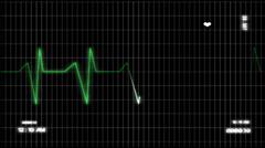 Electro Cardio Graphics monitor ECG - stock footage