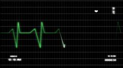 Electro Cardio Graphics monitor HD ECG Stock Footage