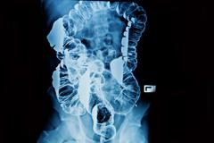 barium enema of a man demonstrated the normal rectum and cecum - stock photo